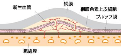 大分大学医学部付属病院 -眼科- 「眼の病気と治療」 -加齢黄斑 ...